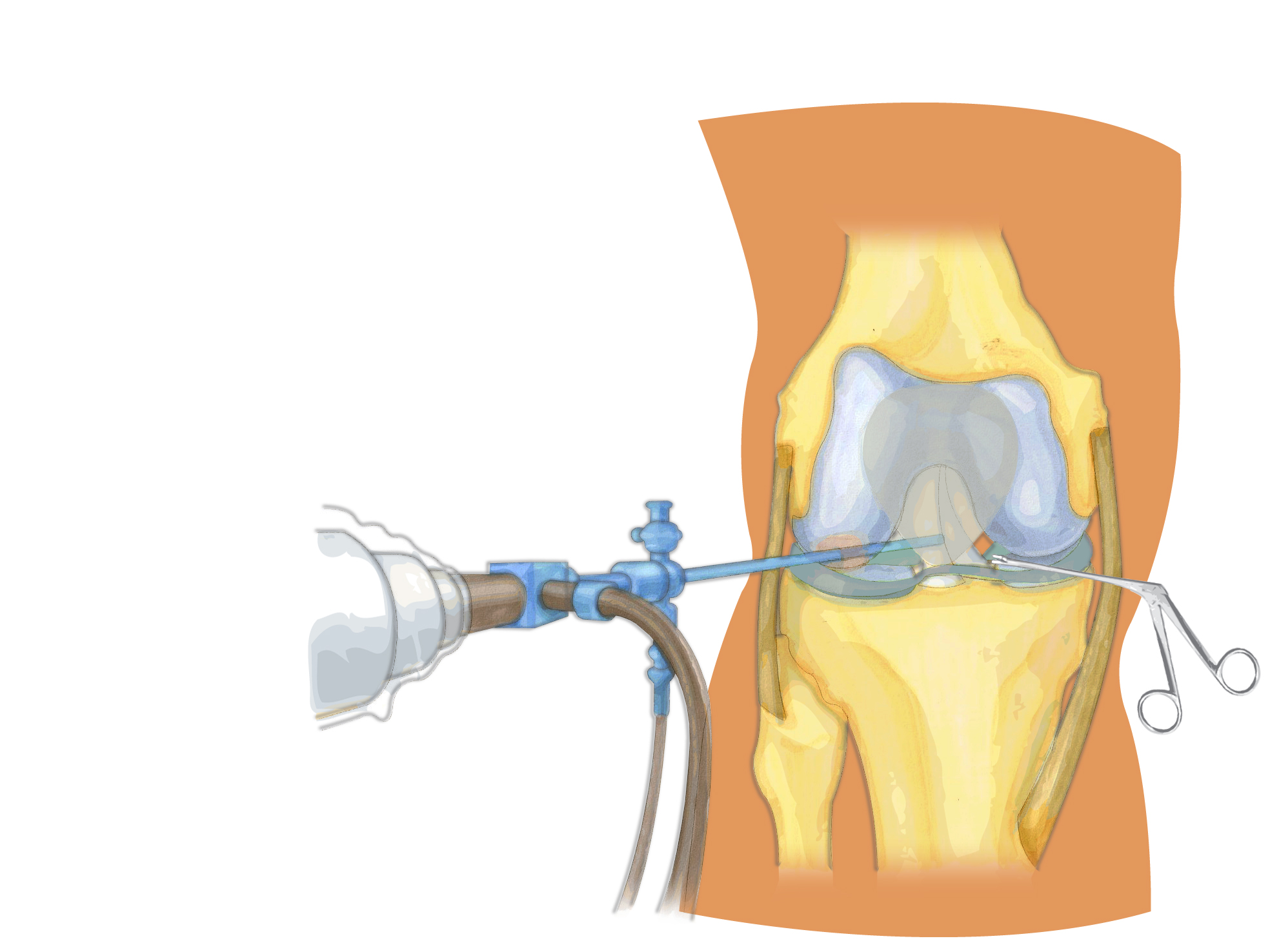 Knee meniscus: rupture, treatment, restoration of functionality 20