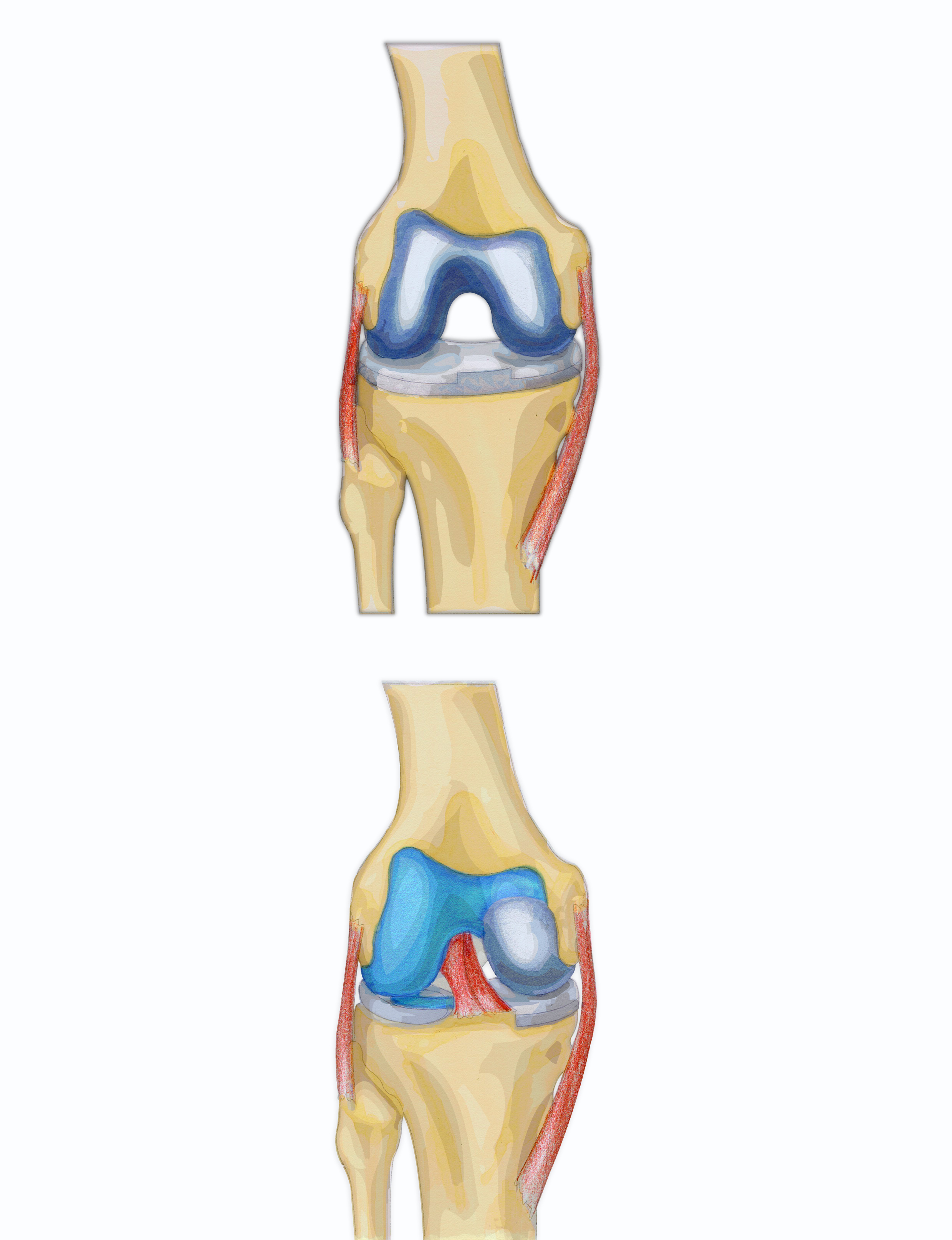 Partial knee replacement orthopaedic tony gibbon diagram showing full and partial knee replacement pooptronica Gallery